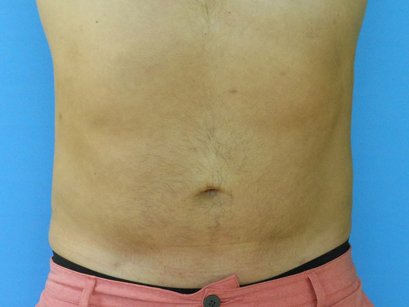 Pubic Mound Liposuction | San Diego, Carlsbad, California