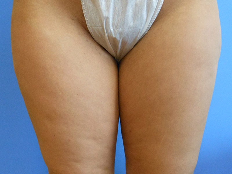 Pubic Mound Liposuction