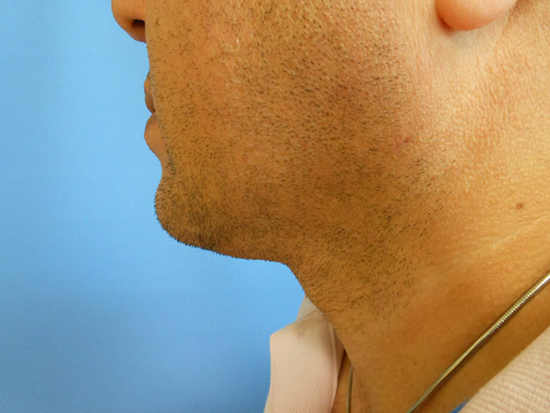 Liposuction of the Neck & Chin