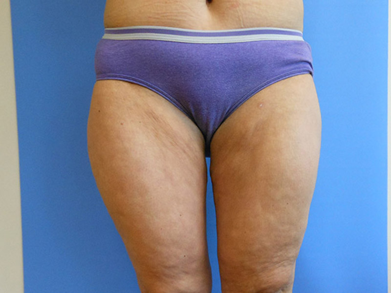 San Diego Liposuction for Thighs